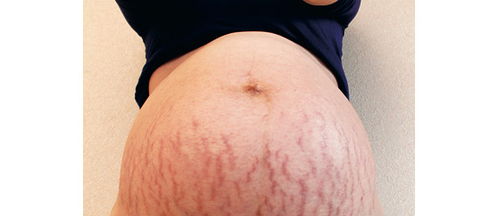 【医師監修】どうしたら防げる?妊娠線